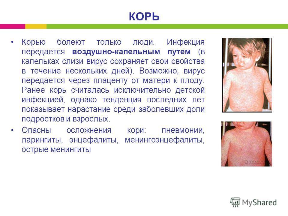 Корью болеют только люди. Инфекция передается воздушно-капельным путем (в капельках слизи вирус сохраняет свои свойства в течение нескольких дней). Возможно, вирус передается через плаценту от матери к плоду. Ранее корь считалась исключительно детско