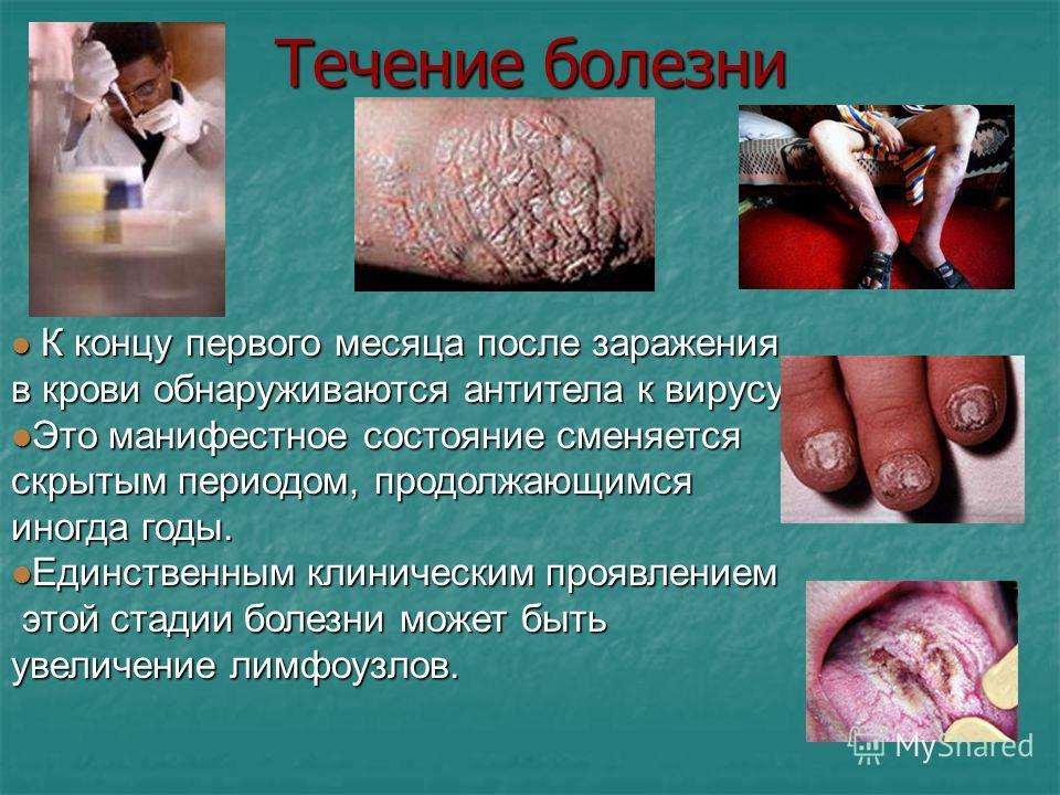 Клиническое течение болезни Инкубационный период СПИДа продолжается от 3 месяцев до 15 18 лет, причём при половом заражении обычно короче, чем при переливании крови. Инкубационный период СПИДа продолжается от 3 месяцев до 15 18 лет, причём при полово
