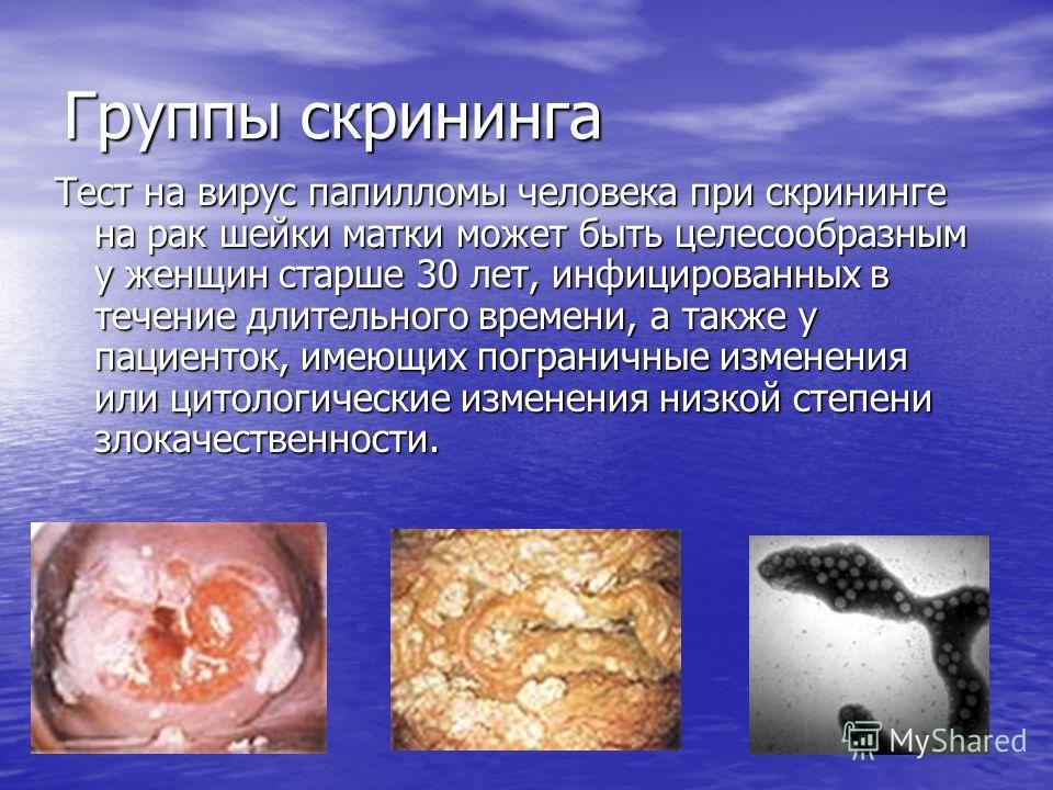 Карциносаркома фото
