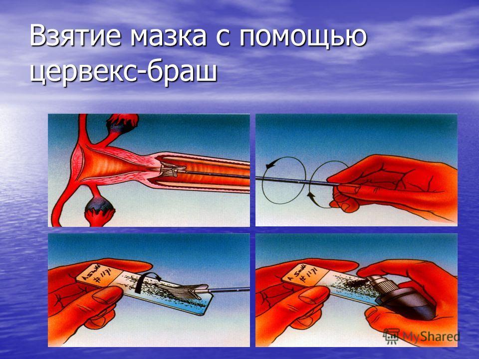 Взятие мазка с помощью цервекс-браш