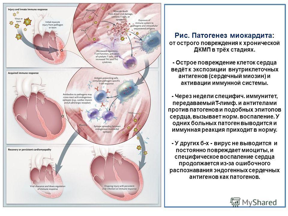 Рис. Патогенез миокардита: от острого повреждения к хронической ДКМП в трёх стадиях. - Острое повреждение клеток сердца ведёт к экспозиции внутриклеточных антигенов (сердечный миозин) и активации иммунной системы. - Через недели специфич. иммунитет,