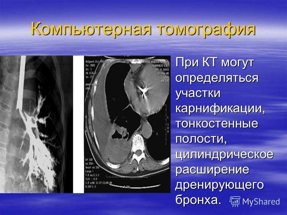 Компьютерная томография При КТ могут определяться участки карнификации, тонкостенные полости, цилиндрическое расширение дренирующего бронха. При КТ могут определяться участки карнификации, тонкостенные полости, цилиндрическое расширение дренирующего