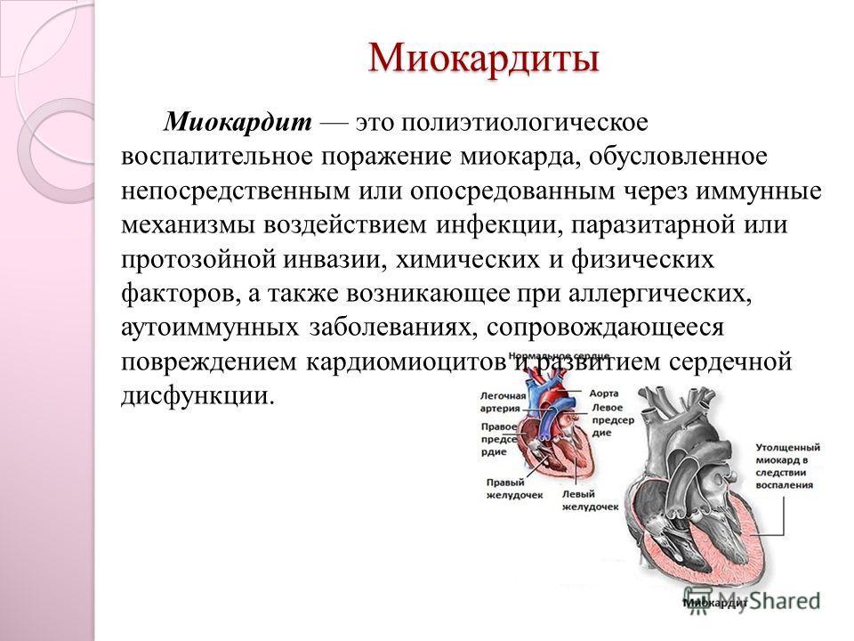 Миокардиты Миокардит это полиэтиологическое воспалительное поражение миокарда, обусловленное непосредственным или опосредованным через иммунные механизмы воздействием инфекции, паразитарной или протозойной инвазии, химических и физических факторов, а