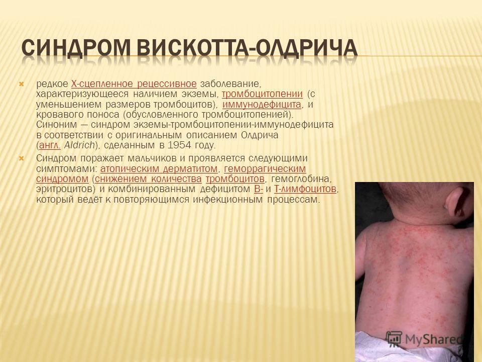 редкое Х-сцепленное рецессивное заболевание, характеризующееся наличием экземы, тромбоцитопении (с уменьшением размеров тромбоцитов), иммунодефицита, и кровавого поноса (обусловленного тромбоцитопенией). Синоним синдром экземы-тромбоцитопении-иммунод