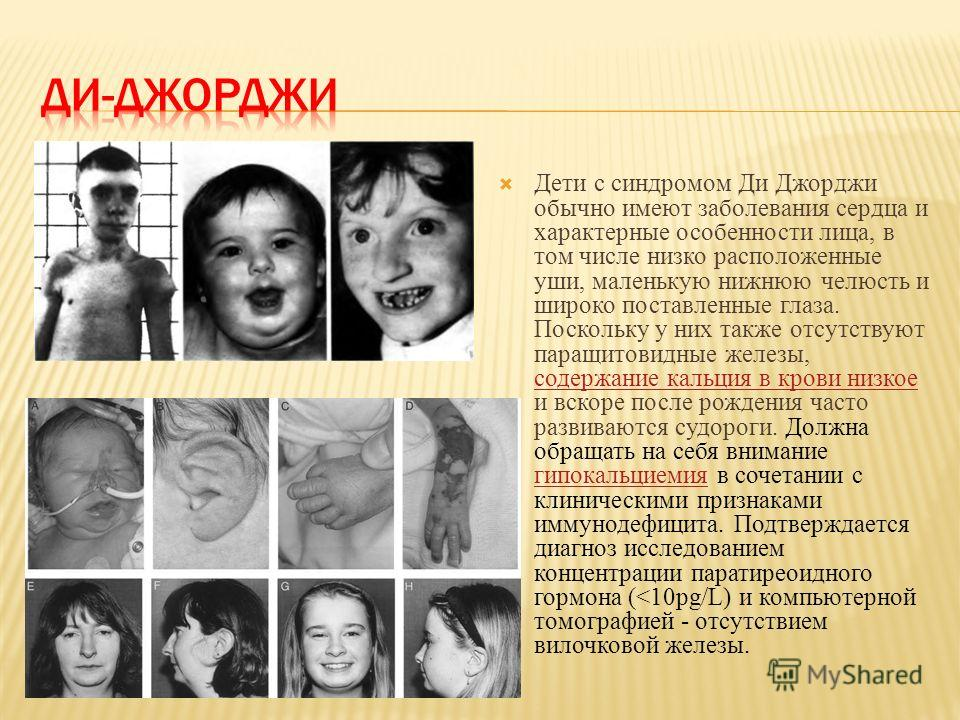 Дети с синдромом Ди Джорджи обычно имеют заболевания сердца и характерные особенности лица, в том числе низко расположенные уши, маленькую нижнюю челюсть и широко поставленные глаза. Поскольку у них также отсутствуют паращитовидные железы, содержание