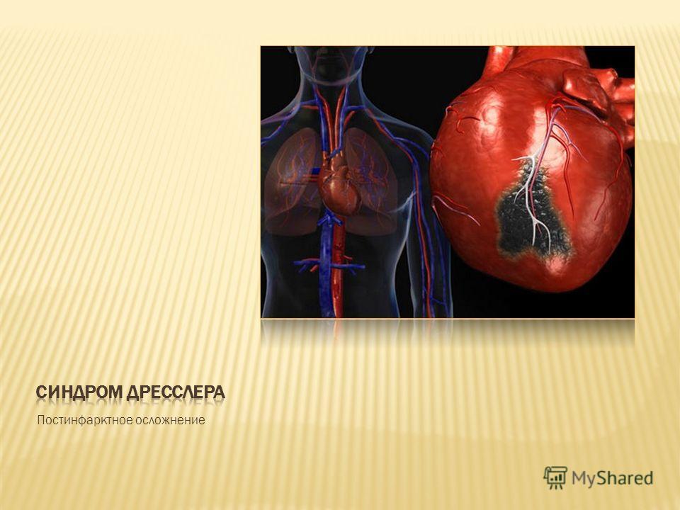Постинфарктное осложнение