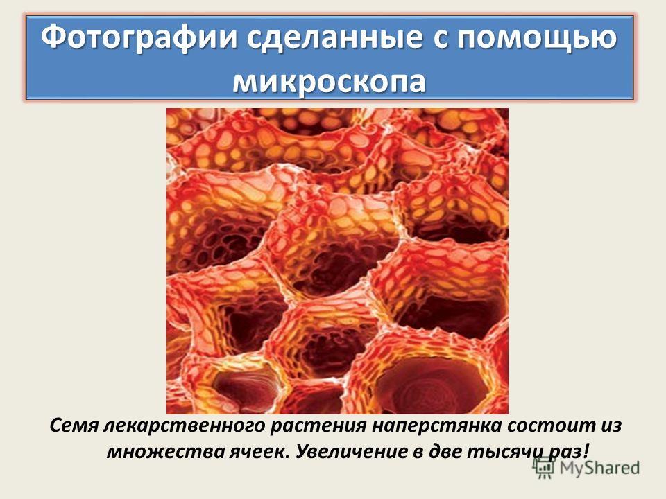 Семя лекарственного растения наперстянка состоит из множества ячеек. Увеличение в две тысячи раз!