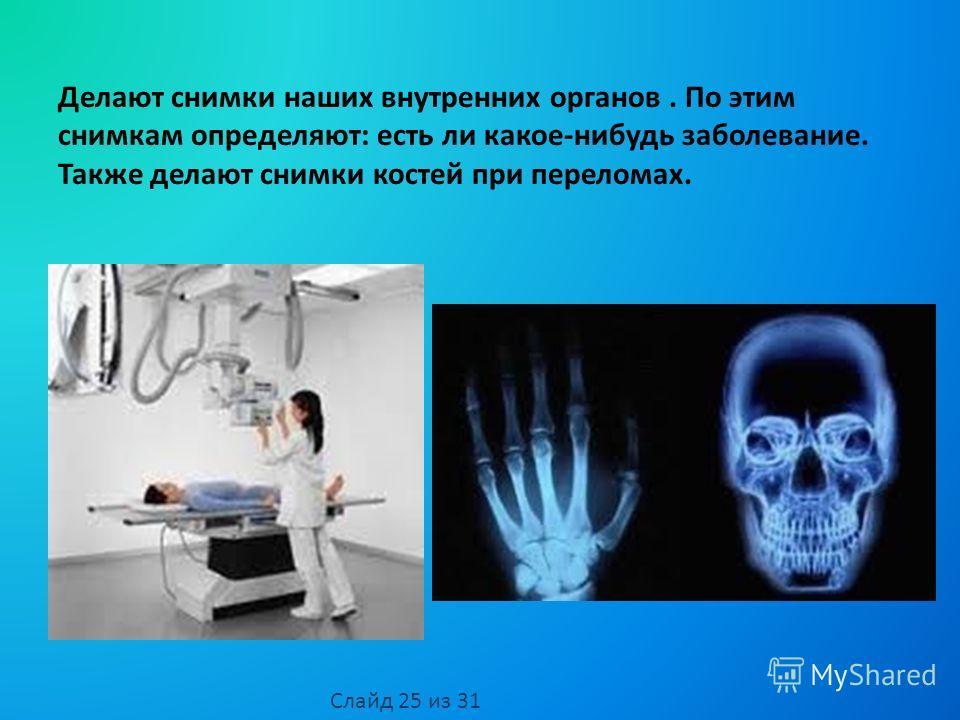 Делают снимки наших внутренних органов. По этим снимкам определяют: есть ли какое-нибудь заболевание. Также делают снимки костей при переломах. Слайд 25 из 31