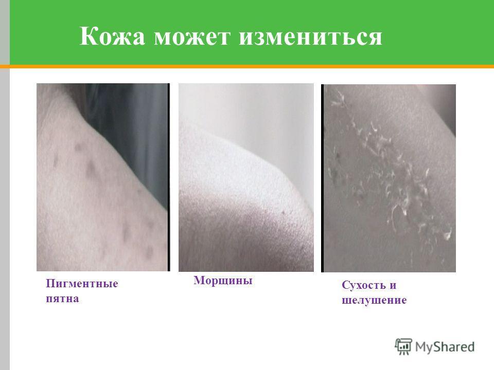 Сухость и шелушение Кожа может измениться Пигментные пятна Морщины