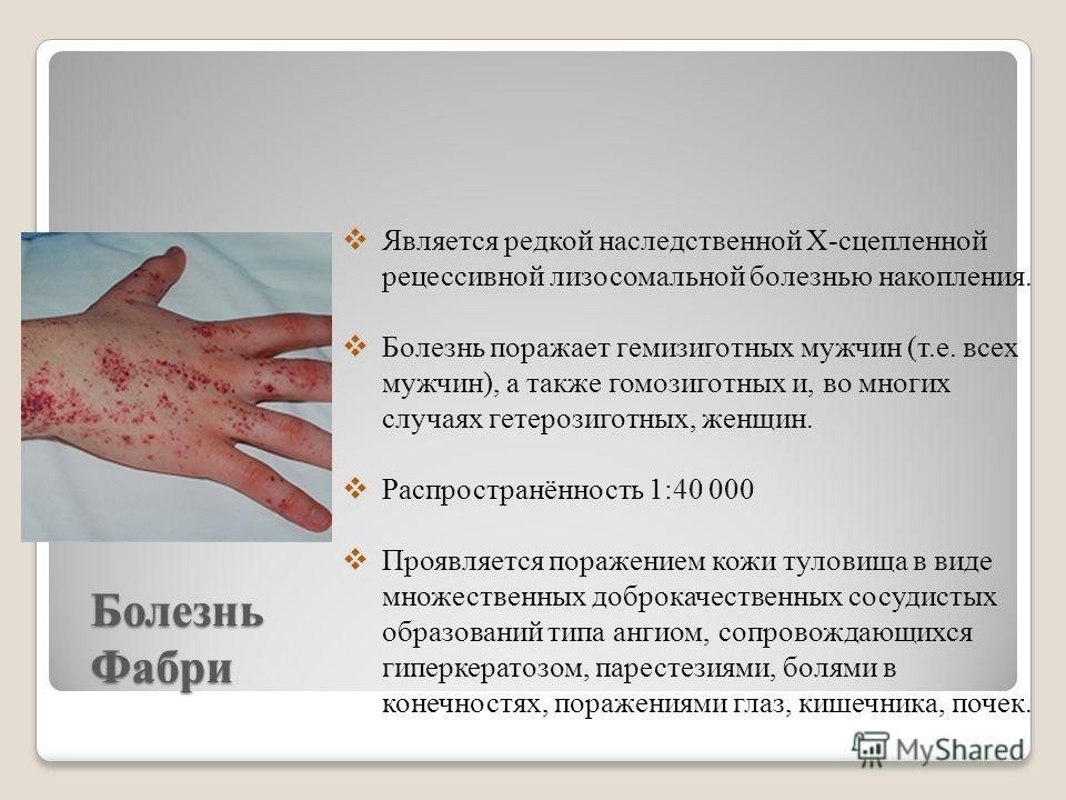 Болезнь Фабри Является редкой наследственной Х-сцепленной рецессивной лизосомальной болезнью накопления. Болезнь поражает гемизиготных мужчин (т.е. всех мужчин), а также гомозиготных и, во многих случаях гетерозиготных, женщин. Распространённость 1:4