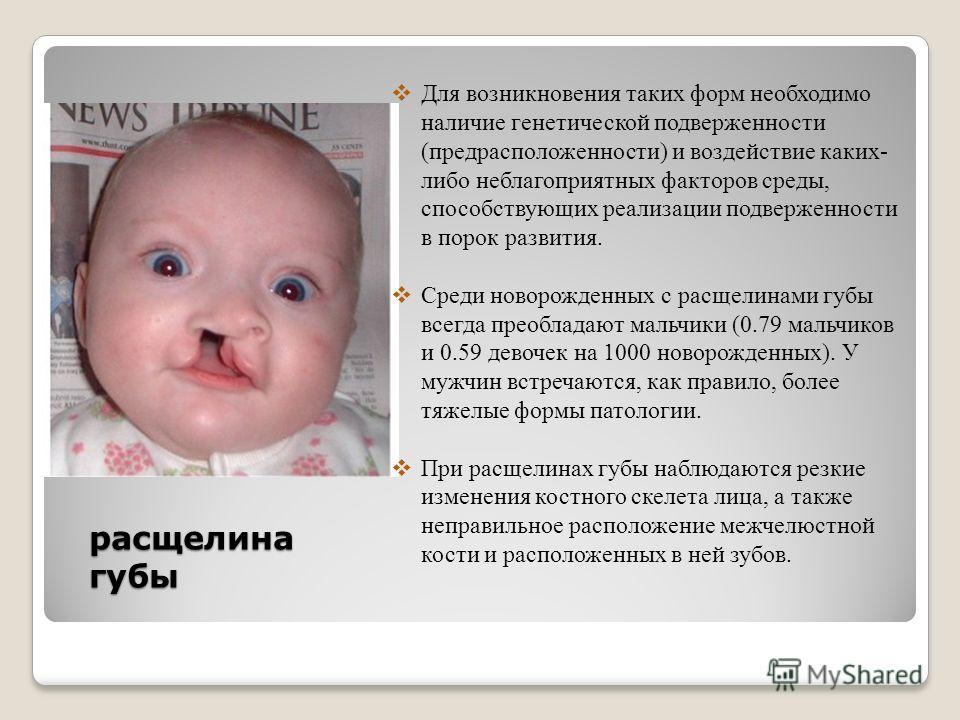расщелина губы Для возникновения таких форм необходимо наличие генетической подверженности (предрасположенности) и воздействие каких- либо неблагоприятных факторов среды, способствующих реализации подверженности в порок развития. Среди новорожденных