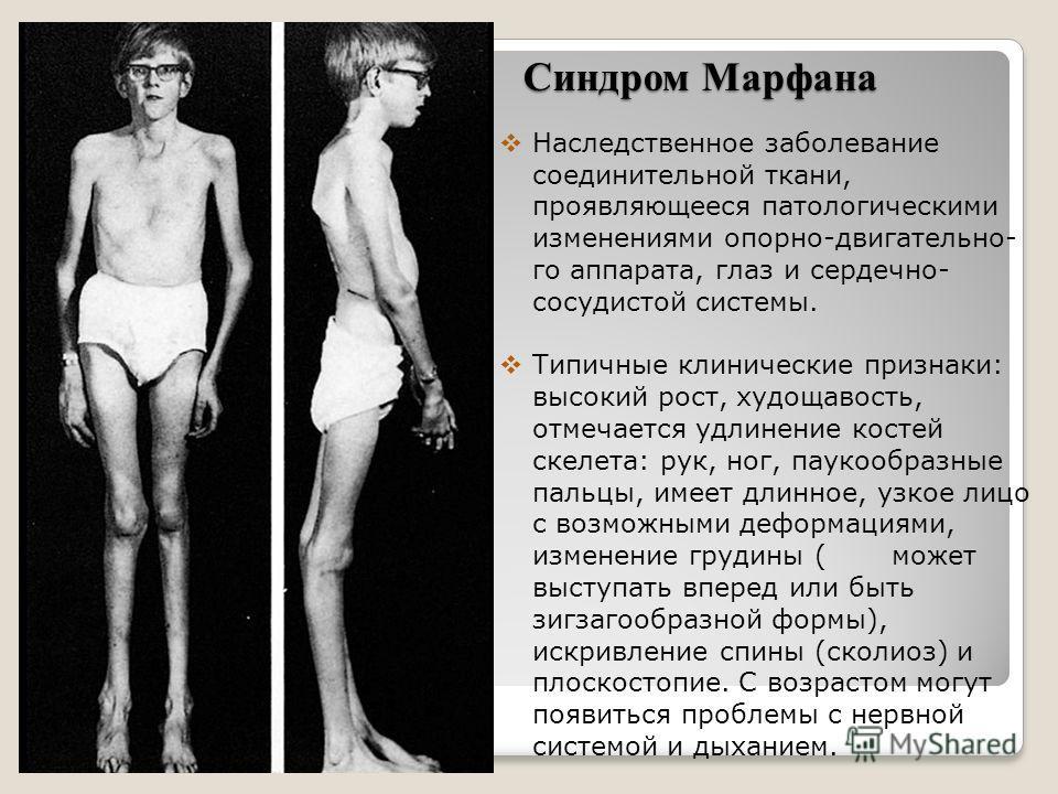 Синдром Марфана Наследственное заболевание соединительной ткани, проявляющееся патологическими изменениями опорно-двигательно- го аппарата, глаз и сердечно- сосудистой системы. Типичные клинические признаки: высокий рост, худощавость, отмечается удли