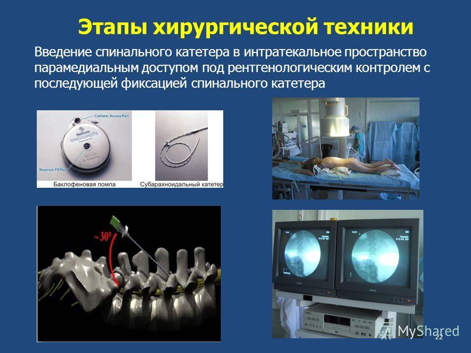 Этапы хирургической техники Введение спинального катетера в интратекальное пространство парамедиальным доступом под рентгенологическим контролем с последующей фиксацией спинального катетера 22