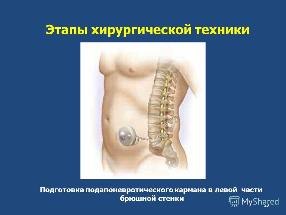 Этапы хирургической техники Подготовка подапоневротического кармана в левой части брюшной стенки 23