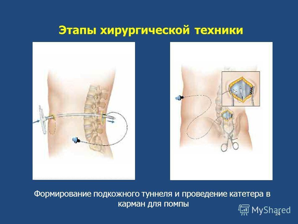Этапы хирургической техники Формирование подкожного туннеля и проведение катетера в карман для помпы 24