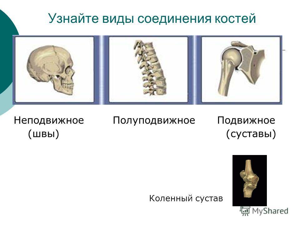 Узнайте виды соединения костей Неподвижное Полуподвижное Подвижное (швы) (суставы) Коленный сустав