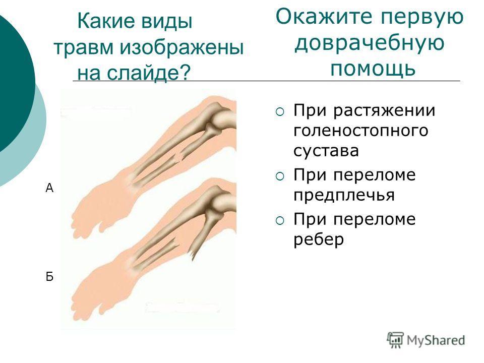 Какие виды травм изображены на слайде? При растяжении голеностопного сустава При переломе предплечья При переломе ребер А Б Окажите первую доврачебную помощь