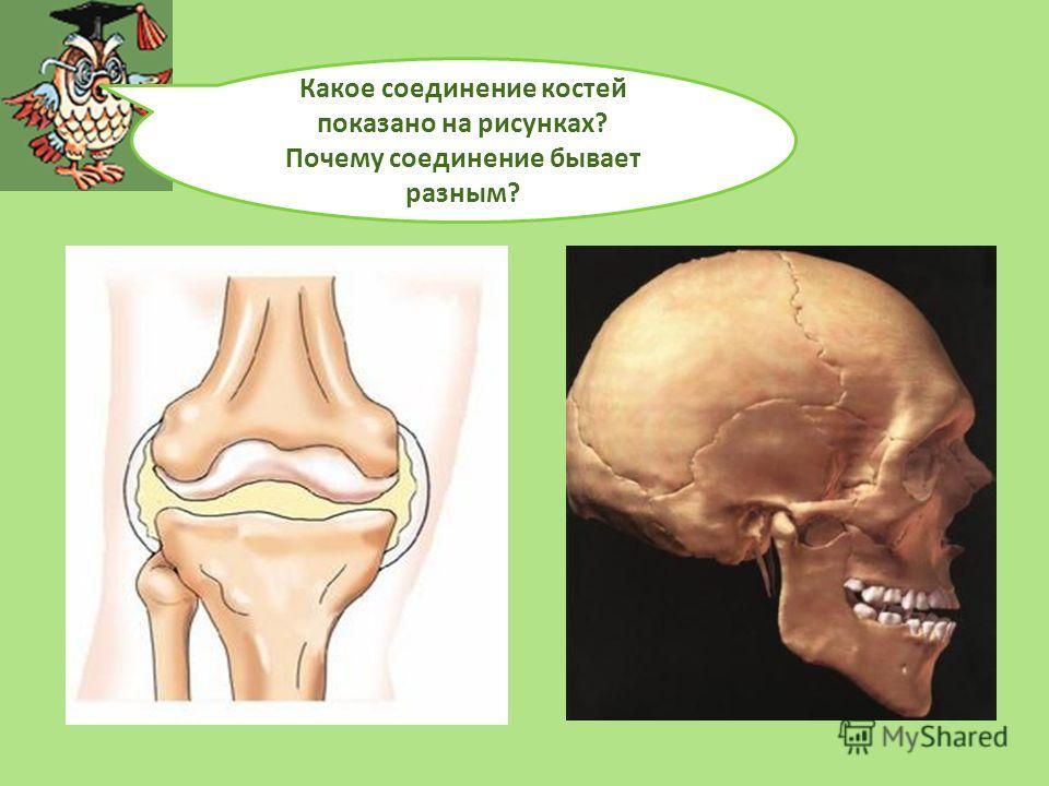 Какое соединение костей показано на рисунках? Почему соединение бывает разным?