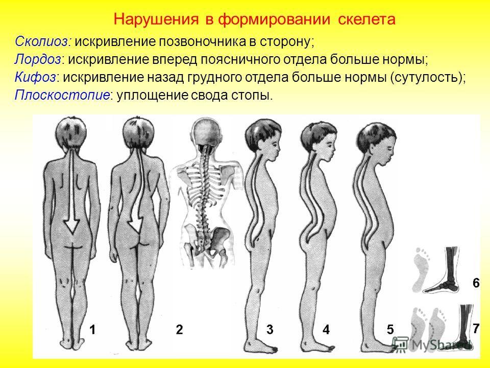 В связи с прямохождением: - стопа человека имеет сводчатую форму, - массивные пяточные кости; - нижние конечности массивнее верхних; - таз расширенный, чашевидный; - S-образный позвоночник имеет изгибы два лордоза (изгибы, направленные вперед шейный