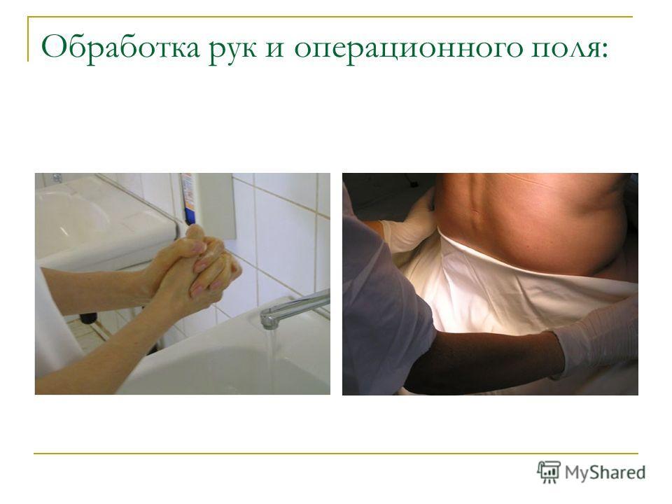 Обработка рук и операционного поля: