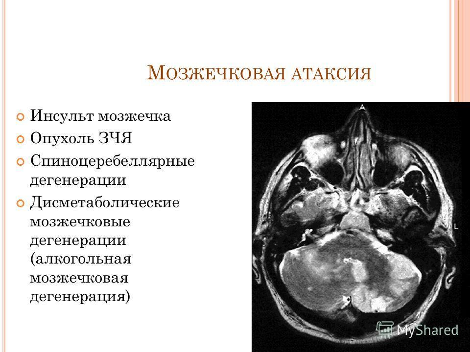 М ОЗЖЕЧКОВАЯ АТАКСИЯ Инсульт мозжечка Опухоль ЗЧЯ Спиноцеребеллярные дегенерации Дисметаболические мозжечковые дегенерации (алкогольная мозжечковая дегенерация)