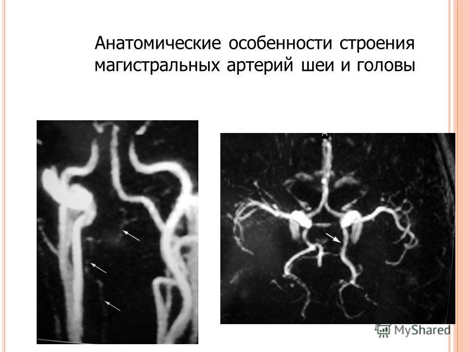 Анатомические особенности строения магистральных артерий шеи и головы