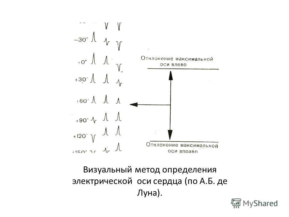 Визуальный. Метод основан на двух известных принципах: - максимальное значение алгебраической суммы зубцов Q, R, S бывает в том отведении, где ЭОС параллельна или близка оси отведения; - комплекс типа RS, где R=S, бывает в том отведении, ось которого