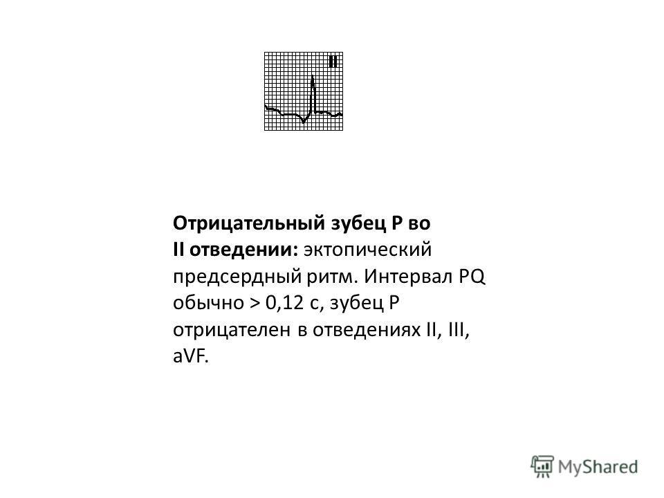 Глубокий отрицательный P в отведении V 1 : увеличение левого предсердия. P mitrale: в отведении V 1 конечная часть (восходящее колено) зубца P расширена (> 0,04 с), амплитуда его > 1 мм, зубец P расширен во II отведении (> 0,12 с). Наблюдается при ми