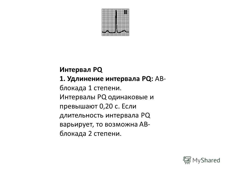 Отрицательный зубец P во II отведении: эктопический предсердный ритм. Интервал PQ обычно > 0,12 с, зубец P отрицателен в отведениях II, III, aVF.