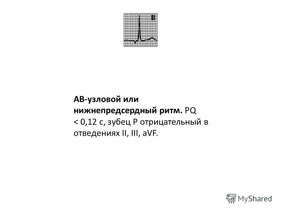 Синдром WPW. PQ < 0,12 с, наличие дельта-волны, комплексы QRS широкие, интервал ST и зубец T дискордантны комплексу QRS.