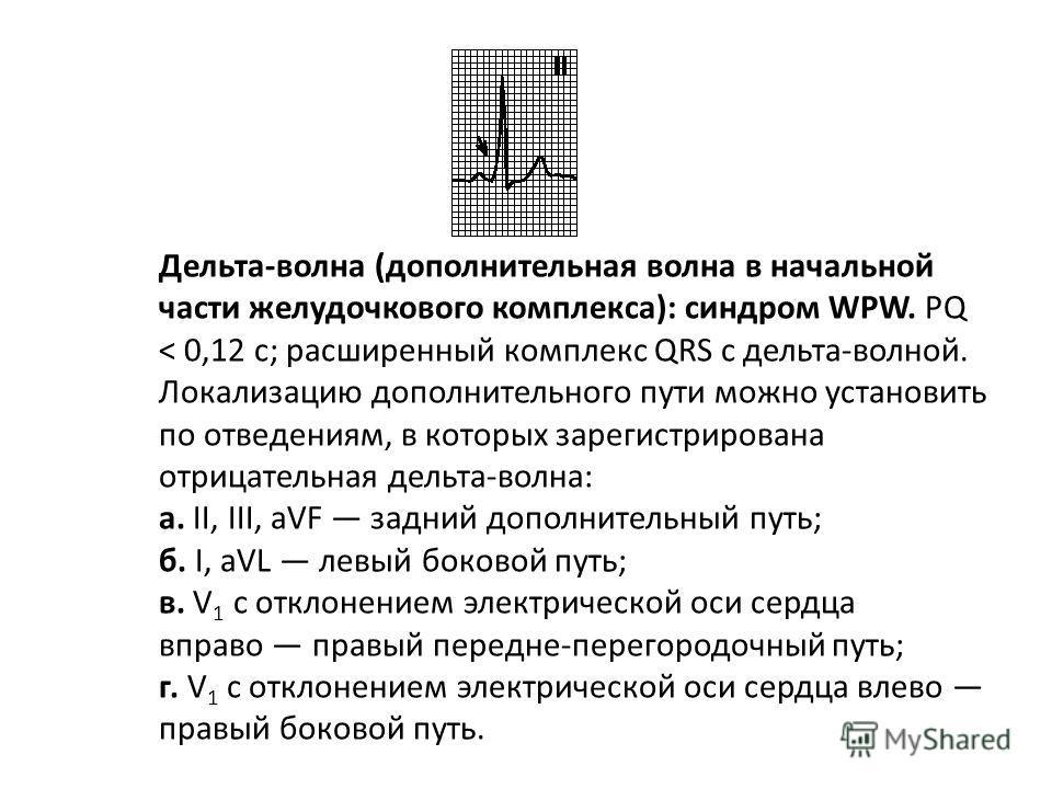 Смещение переходной зоны влево. Переходная зона смещена к V 5 или V 6. R/S < 1 в отведениях V 5, V 6. Встречается в норме, при передне-перегородочном и переднем инфаркте миокарда, дилатационной кардиомиопатии и гипертрофической кардиомиопатии, гиперт