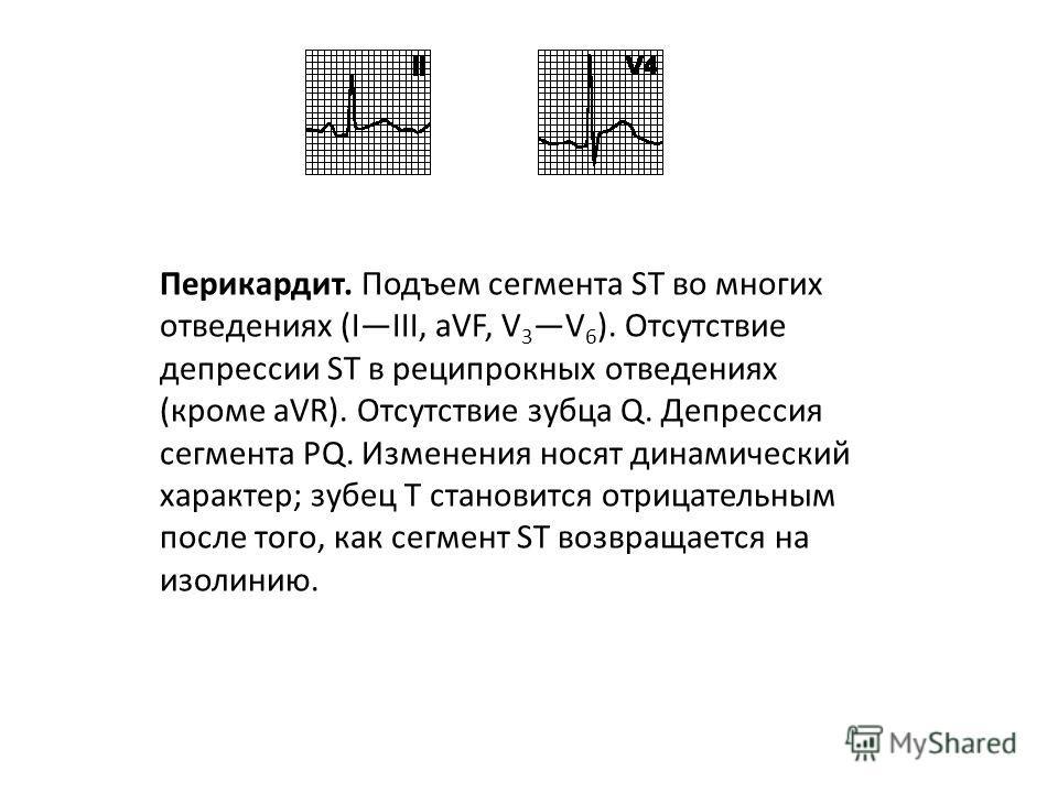Сегмент ST 1. Подъем сегмента ST а. Повреждение миокарда. В нескольких отведениях подъем сегмента ST выпуклостью вверх с переходом в зубец T. В реципрокных отведениях депрессия сегмента ST. Часто регистрируется зубец Q. Изменения носят динамический х