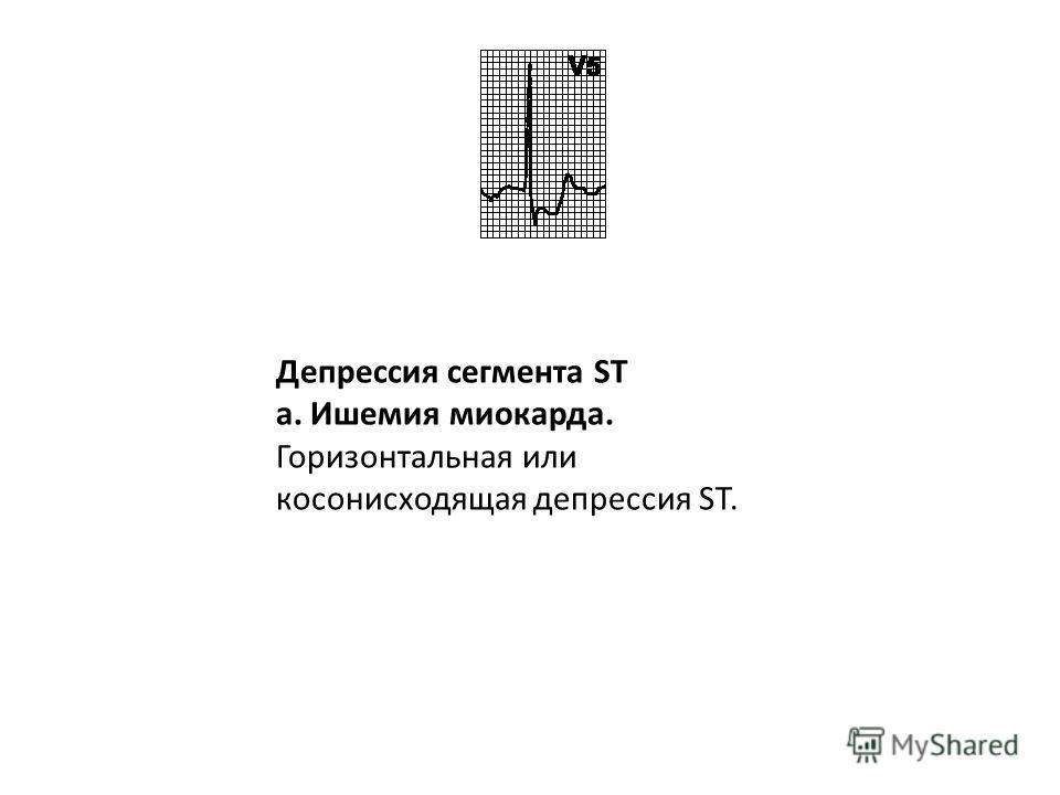 Прочие причины подъема сегмента ST. Гиперкалиемия, острое легочное сердце, миокардиты, опухоли сердца.