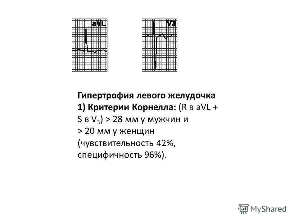 ГЛЖ Критерии в отведениях от конечностей R I + S III > 25 мм R avL > 11 мм** R avF > 20 мм S avR > 14 мм Критерии в грудных отведениях R V5(V6) > 26 мм R V5(V6) + S V1(V2) > 35 мм Самый высокий R зубец + самый глубокий S зубец в грудных отведениях >