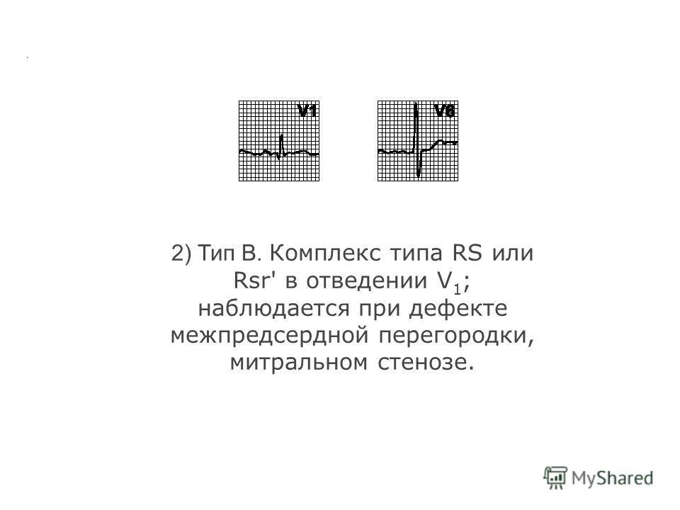 а. Гипертрофия правого желудочка. Отклонение электрической оси сердца вправо; R/S > 1 в V 1 и/или R/S < 1 в V 6. В зависимости от формы комплекса QRS в отведении V 1 выделяют три типа гипертрофии правого желудочка. 1) Тип A. Высокий R в отведении V 1