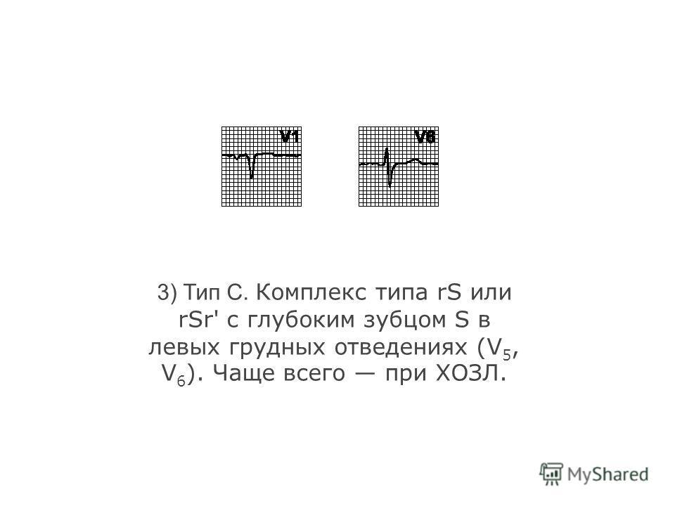 2) Тип B. Комплекс типа RS или Rsr' в отведении V 1 ; наблюдается при дефекте межпредсердной перегородки, митральном стенозе..