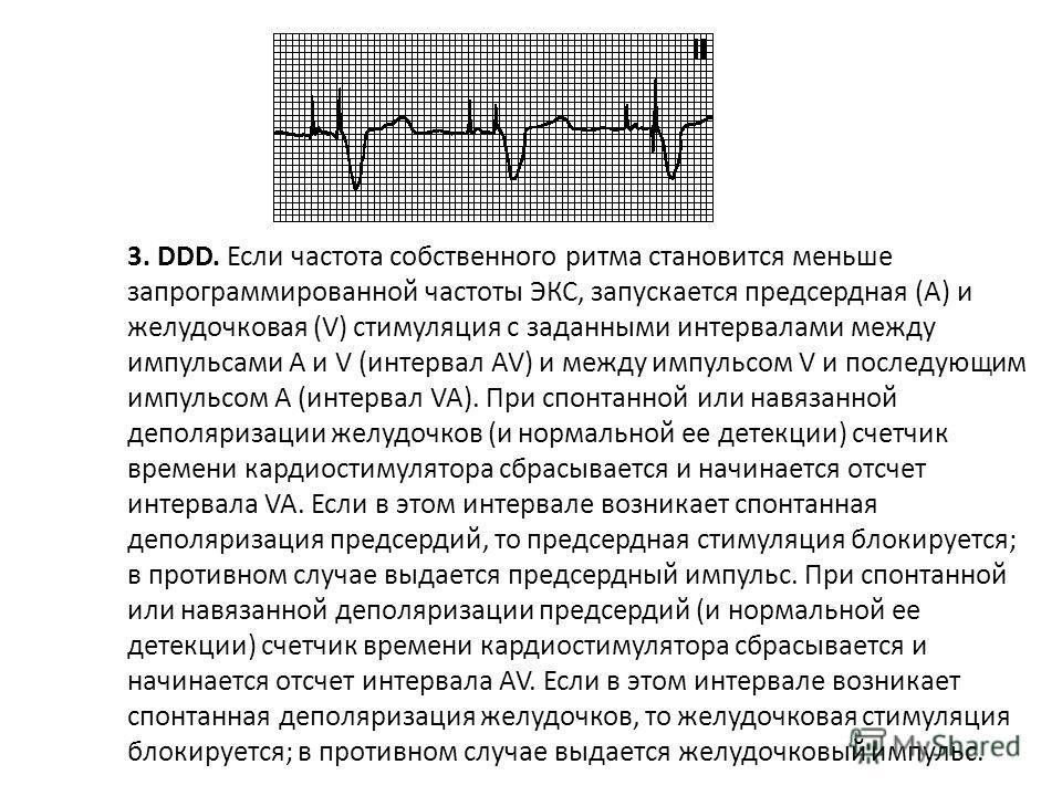 2. VVI. При спонтанной деполяризации желудочков (и нормальной ее детекции) счетчик времени кардиостимулятора сбрасывается. Если по прошествии заданного интервала VV спонтанная деполяризация желудочков не повторяется, запускается желудочковая стимуляц