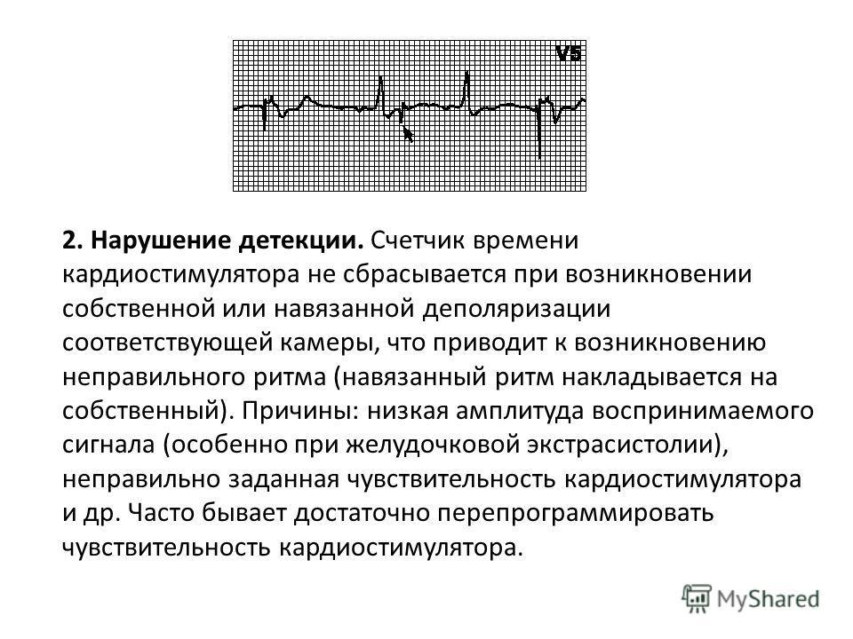 В. Дисфункция кардиостимулятора и аритмии 1. Нарушение навязывания. За артефактом стимуляции не следует комплекс деполяризации, хотя миокард не находится в стадии рефрактерности. Причины: смещение стимулирующего электрода, перфорация сердца, увеличен