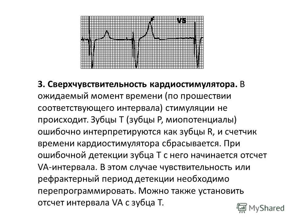 2. Нарушение детекции. Счетчик времени кардиостимулятора не сбрасывается при возникновении собственной или навязанной деполяризации соответствующей камеры, что приводит к возникновению неправильного ритма (навязанный ритм накладывается на собственный