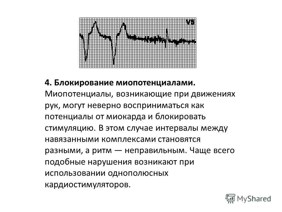 3. Сверхчувствительность кардиостимулятора. В ожидаемый момент времени (по прошествии соответствующего интервала) стимуляции не происходит. Зубцы T (зубцы P, миопотенциалы) ошибочно интерпретируются как зубцы R, и счетчик времени кардиостимулятора сб