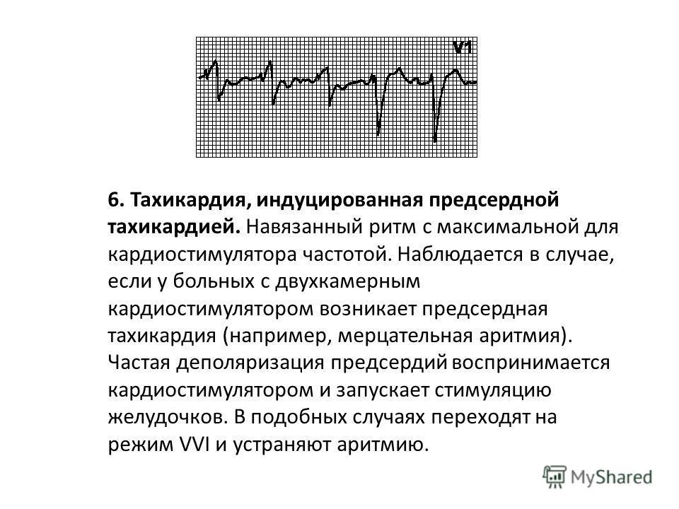 5. Круговая тахикардия. Навязанный ритм с максимальной для кардиостимулятора частотой. Наблюдается в том случае, когда ретроградное возбуждение предсердий после стимуляции желудочков воспринимается предсердным электродом и запускает стимуляцию желудо