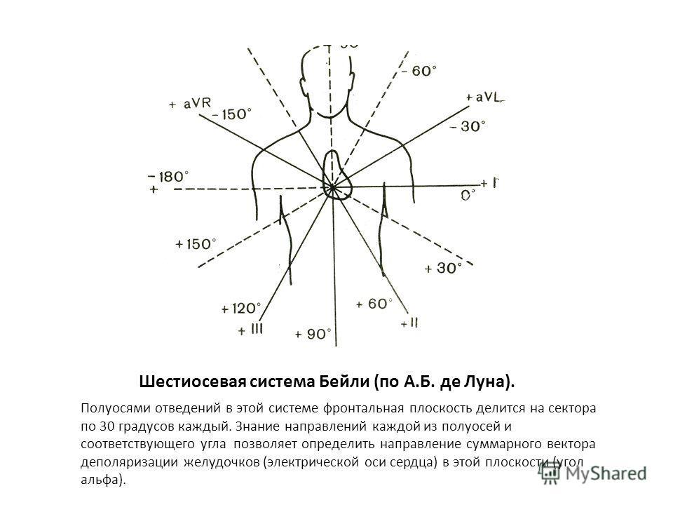 Треугольник Эйнтховена и его проекция на тело человека (по А.Б. де Луна). Для получения принципа формирования ЭКГ в биполярных отведениях Эйнтховен представил второе отведение как алгебраическую сумму первого и третьего отведений: II отв. = 1 отв. +