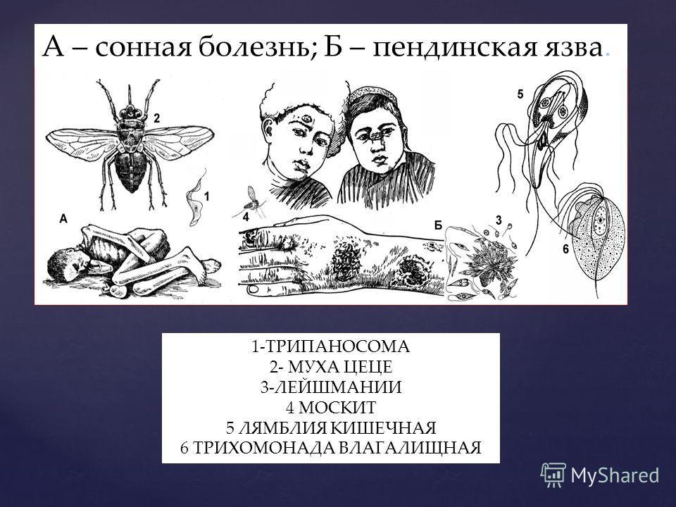 А – сонная болезнь; Б – пендинская язва. 1-ТРИПАНОСОМА 2- МУХА ЦЕЦЕ 3-ЛЕЙШМАНИИ 4 МОСКИТ 5 ЛЯМБЛИЯ КИШЕЧНАЯ 6 ТРИХОМОНАДА ВЛАГАЛИЩНАЯ