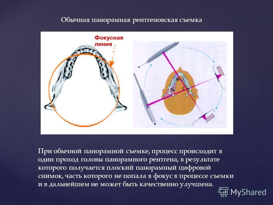 Обычная панорамная рентгеновская съемка При обычной панорамной съемке, процесс происходит в один проход головы панорамного рентгена, в результате которого получается плоский панорамный цифровой снимок, часть которого не попала в фокус в процессе съем