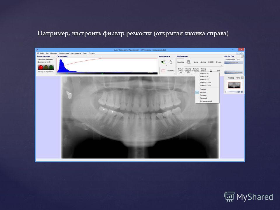 Например, настроить фильтр резкости (открытая иконка справа)
