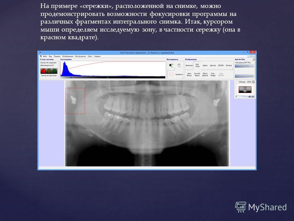 На примере «сережки», расположенной на снимке, можно продемонстрировать возможности фокусировки программы на различных фрагментах интегрального снимка. Итак, курсором мыши определяем исследуемую зону, в частности сережку (она в красном квадрате).