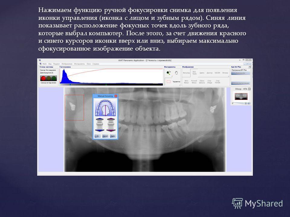 Нажимаем функцию ручной фокусировки снимка для появления иконки управления (иконка с лицом и зубным рядом). Синяя линия показывает расположение фокусных точек вдоль зубного ряда, которые выбрал компьютер. После этого, за счет движения красного и сине