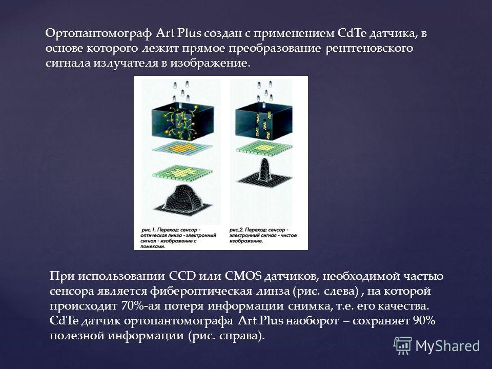 Ортопантомограф Art Plus создан с применением CdTe датчика, в основе которого лежит прямое преобразование рентгеновского сигнала излучателя в изображение. При использовании ССD или CMOS датчиков, необходимой частью сенсора является вебер оптическая л