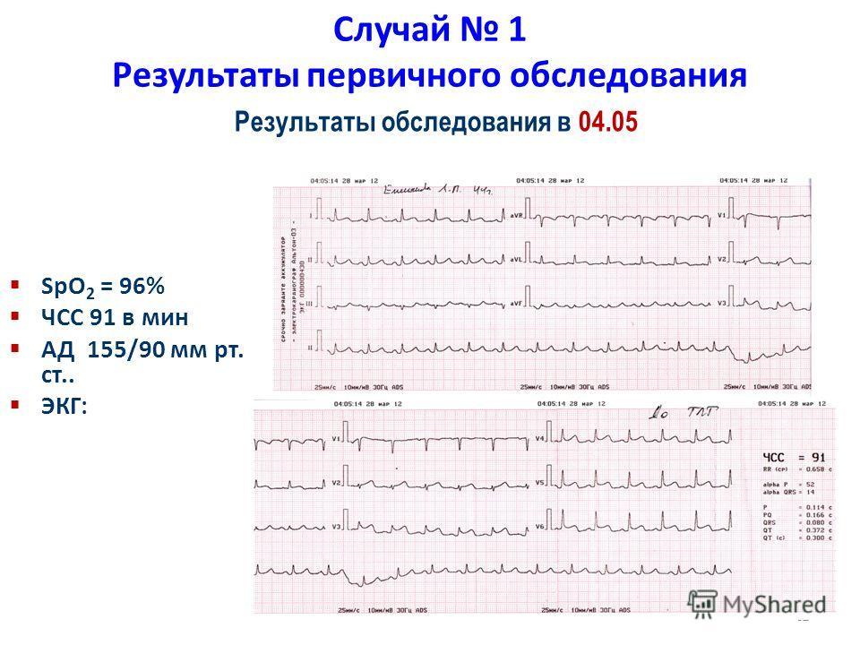 32 Случай 1 Результаты первичного обследования SpO 2 = 96% ЧСС 91 в мин АД 155/90 мм рт. ст.. ЭКГ: Результаты обследования в 04.05