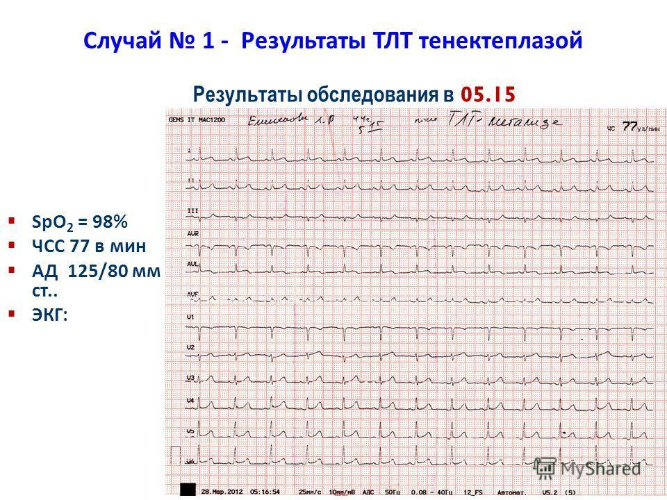 35 Случай 1 - Результаты ТЛТ тенектеплазой SpO 2 = 98% ЧСС 77 в мин АД 125/80 мм рт. ст.. ЭКГ: Результаты обследования в 05.15